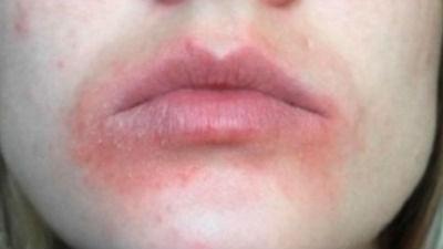 Allergy to Chapstick? - Allergy - MedHelp