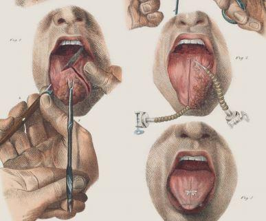 surgery-tongue.jpeg