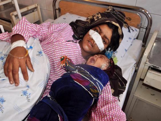 web-taliban-wife-nose-getty.jpg