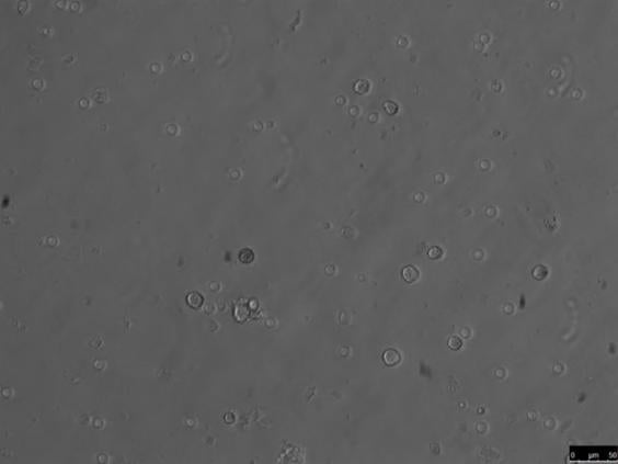 8-sperm-cells-ap.jpg
