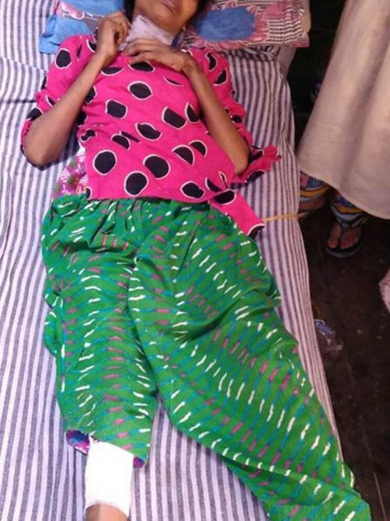 Mukta recovering in hospital in India after she was found in the jungle when she had been dumped