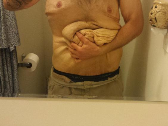Man Loses Weight Of Two People After Mistaking Chest Pain
