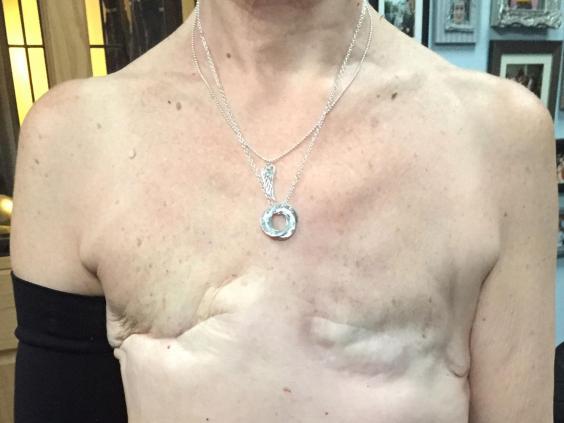 sue-cook-cancer-scar.jpg