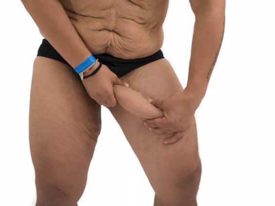 male-cosmetic-surgery-1.jpg