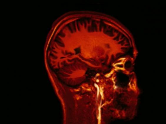 brain-signals.jpg