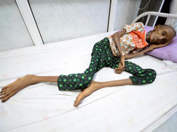 yemen-hunger.jpg
