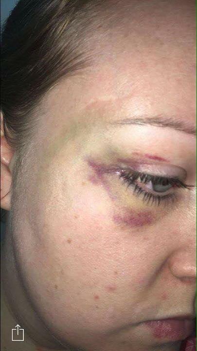hannah-james-bruises.jpg