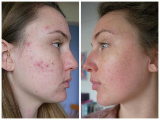 acne after taking steroids