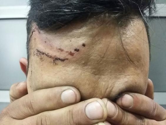 hungary-migrants-injuries.jpg