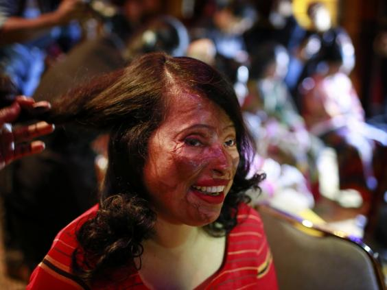 bangladesh-acid-attack-victims-02.jpg