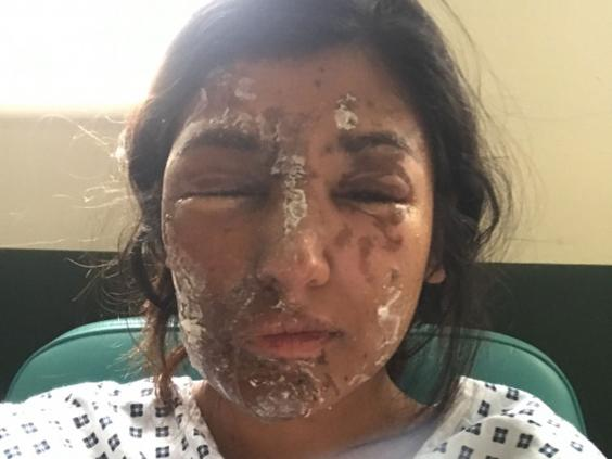 Resham Khan in hospital following an acid attack on 21 June