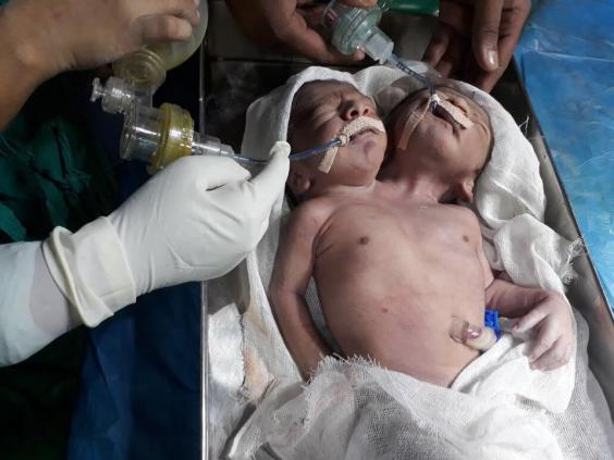 'One-in-a-million' conjoined twins with two heads and same ...