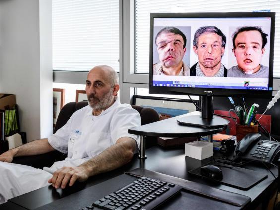 face-transplant-doctor.jpg