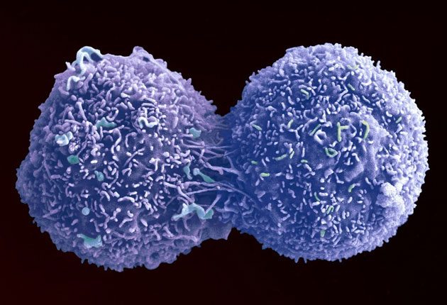 <p>An enhanced image of a lung cancer cell in the act of dividing itself </p>