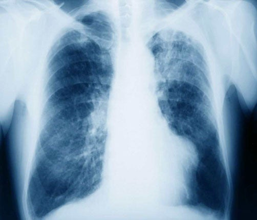 Scientists Ask For Sufferers Of The Asbestos Related