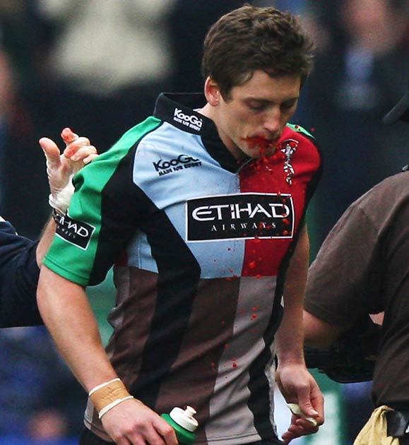 Azerbaijan Rugby Union Official Home: Harlequins Physio To Face HPC