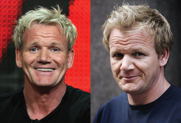 gone today hair tomorrow chef ramsay has 30 000 transplant the