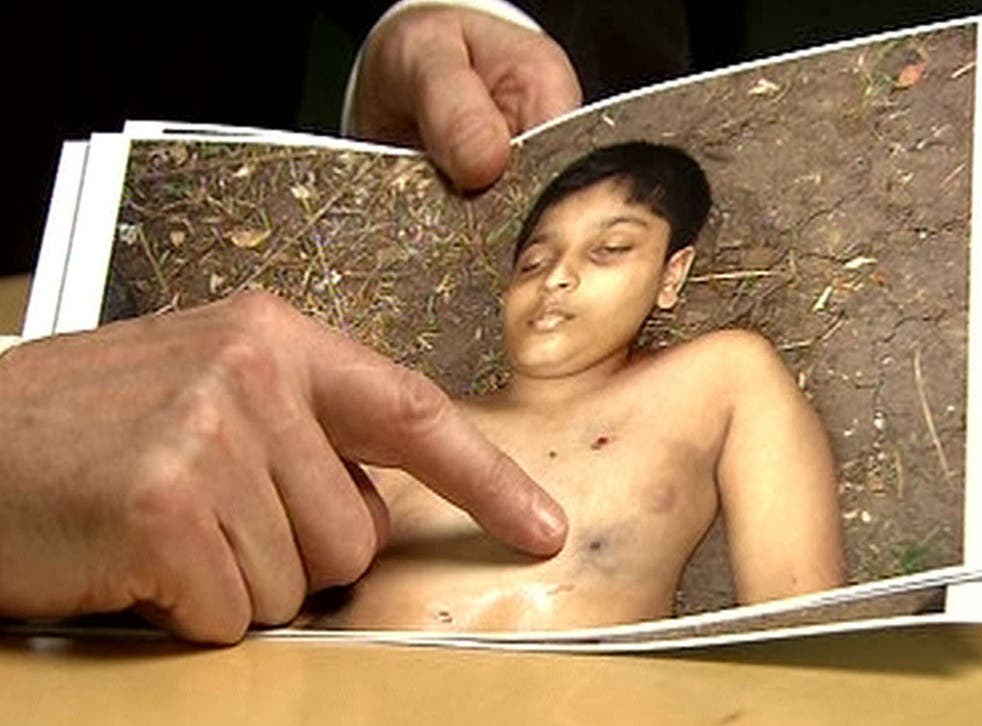 Derrick Pounder points out one of the five bulletwounds in the body of Balachandran Prabhakaran, 12, in Channel 4's Killing Fields