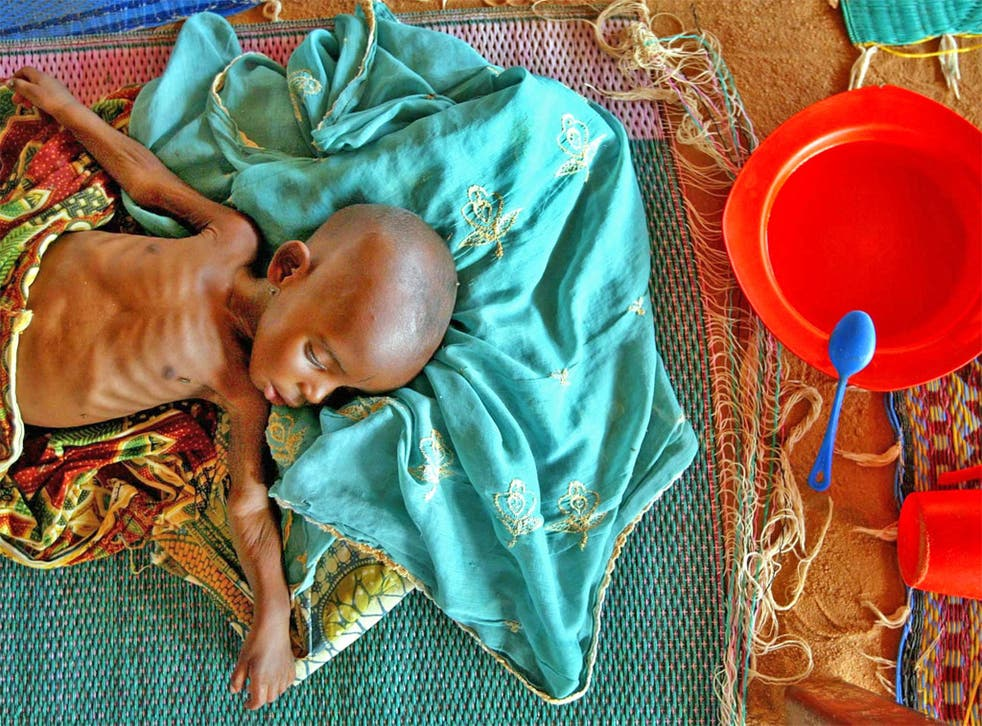 A malnourished infant in Maradi, Niger, which is suffering high food prices and low harvests