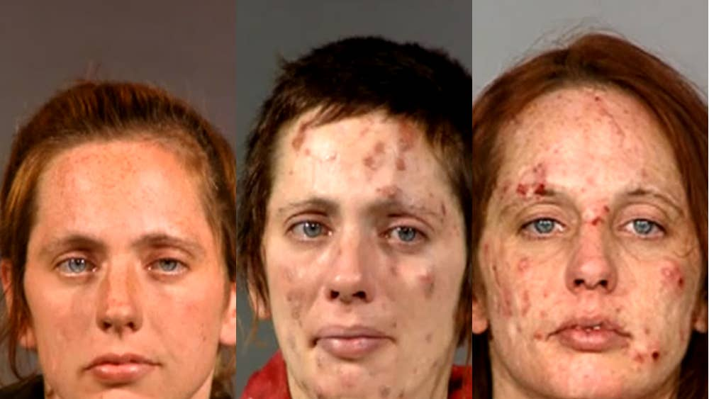 The shocking before and after pictures of meth addicts