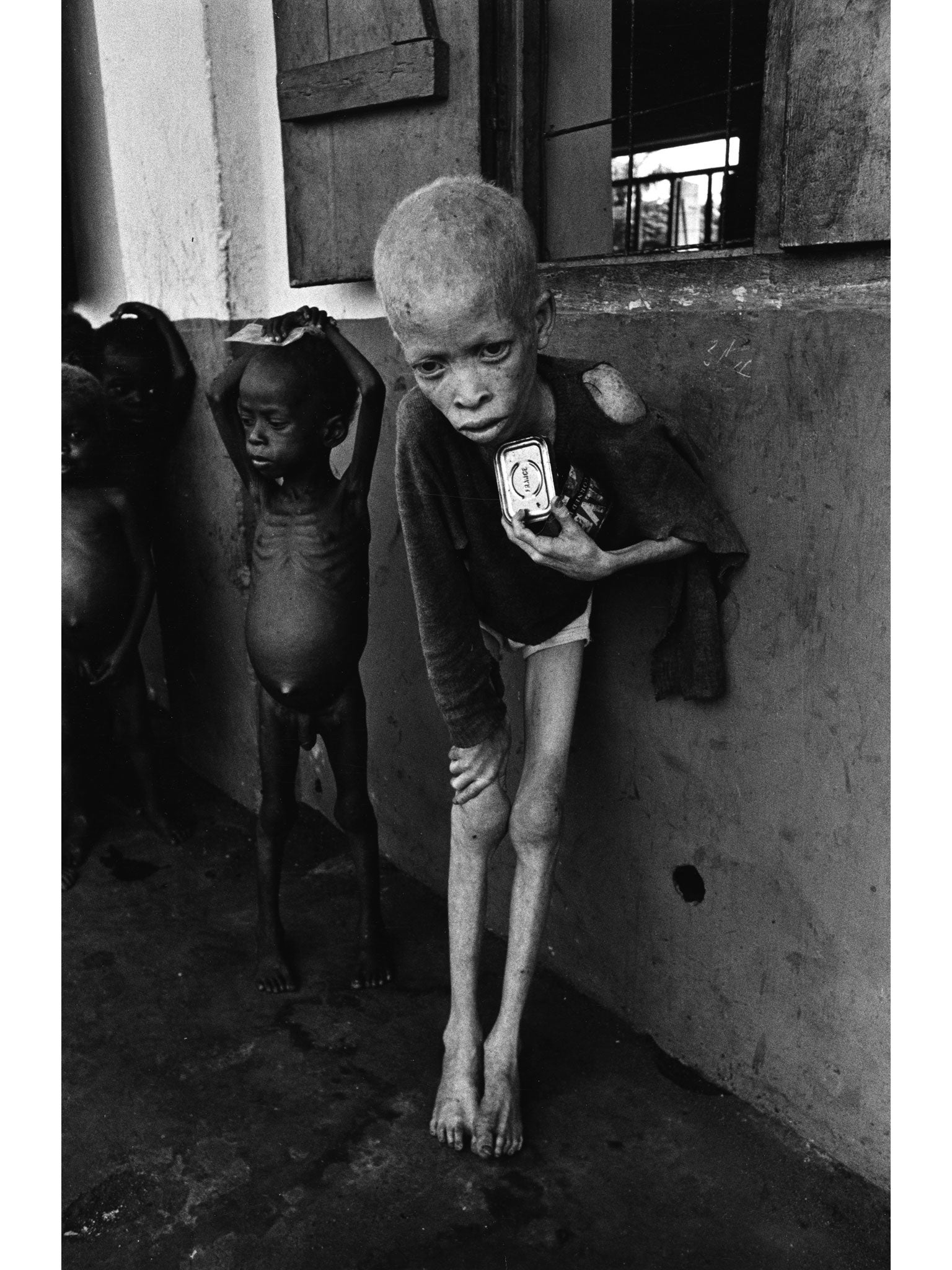 Image result for albino boy biafra