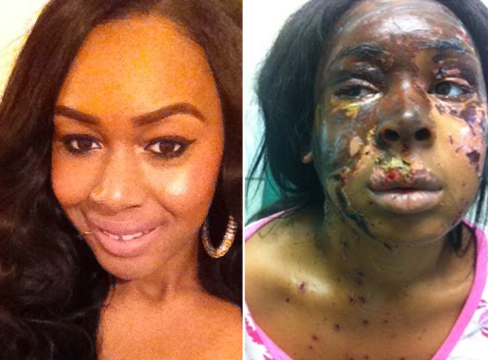 The attack left Naomi Oni with severe facial scarring, right