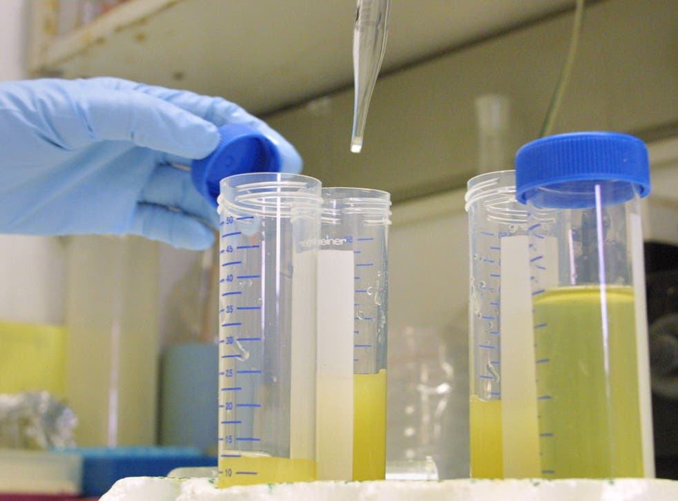 May wee? Test your urine using your smartphone