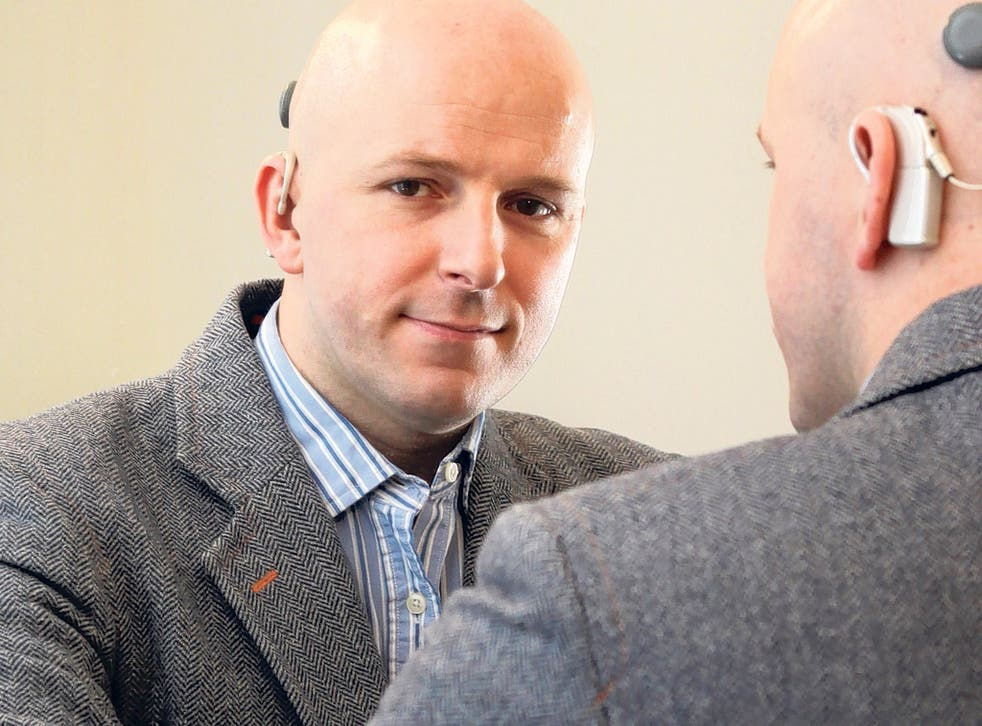 Switched on: Stuart McNaughton with his cochlear implant