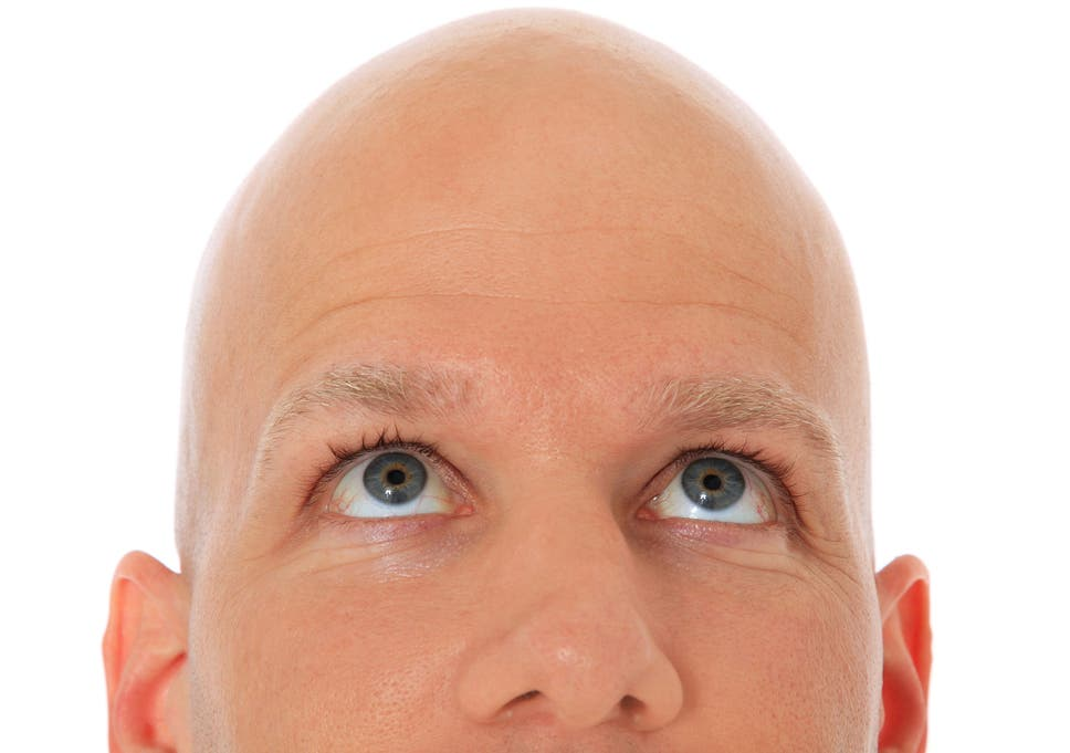 The Bald Facts Hair Loss Could Be The First Sign You Have Heart