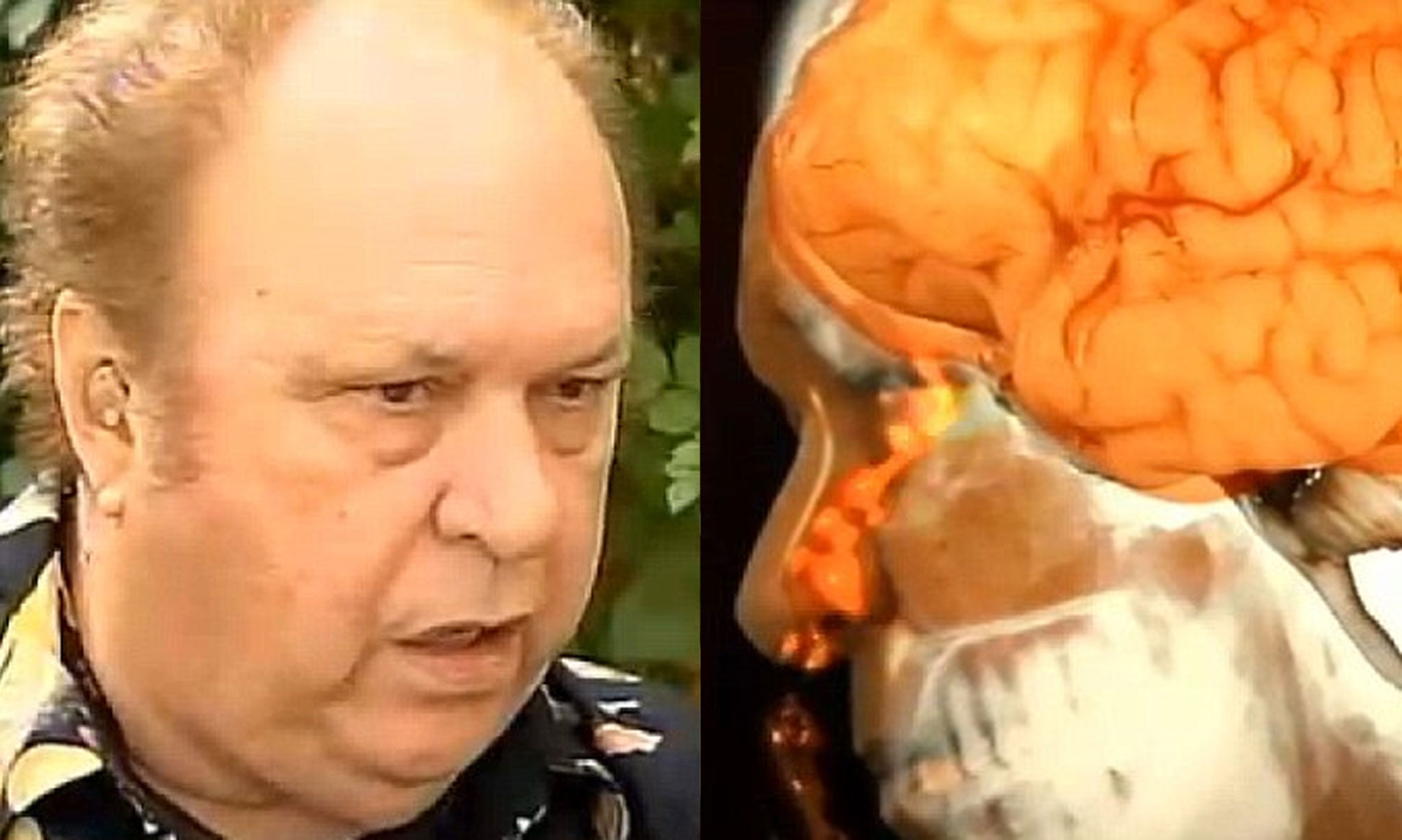Image result for Joe Nagy's Brain Leaked Out His Nose