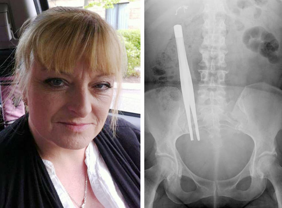 A photograph issued by Irwin Mitchell of the X-Ray showing seven-inch forceps that were left inside Donna Bowett for three months following an operation to remove her gallbladder. The mum of four has joined calls from specialist medical law experts at Irw