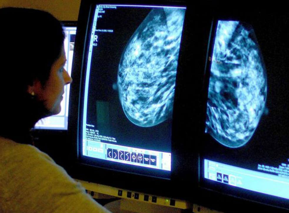 Successful women may be more likely to develop breast cancer – and stress at work, including prejudice, discrimination, and resistance, could be to blame