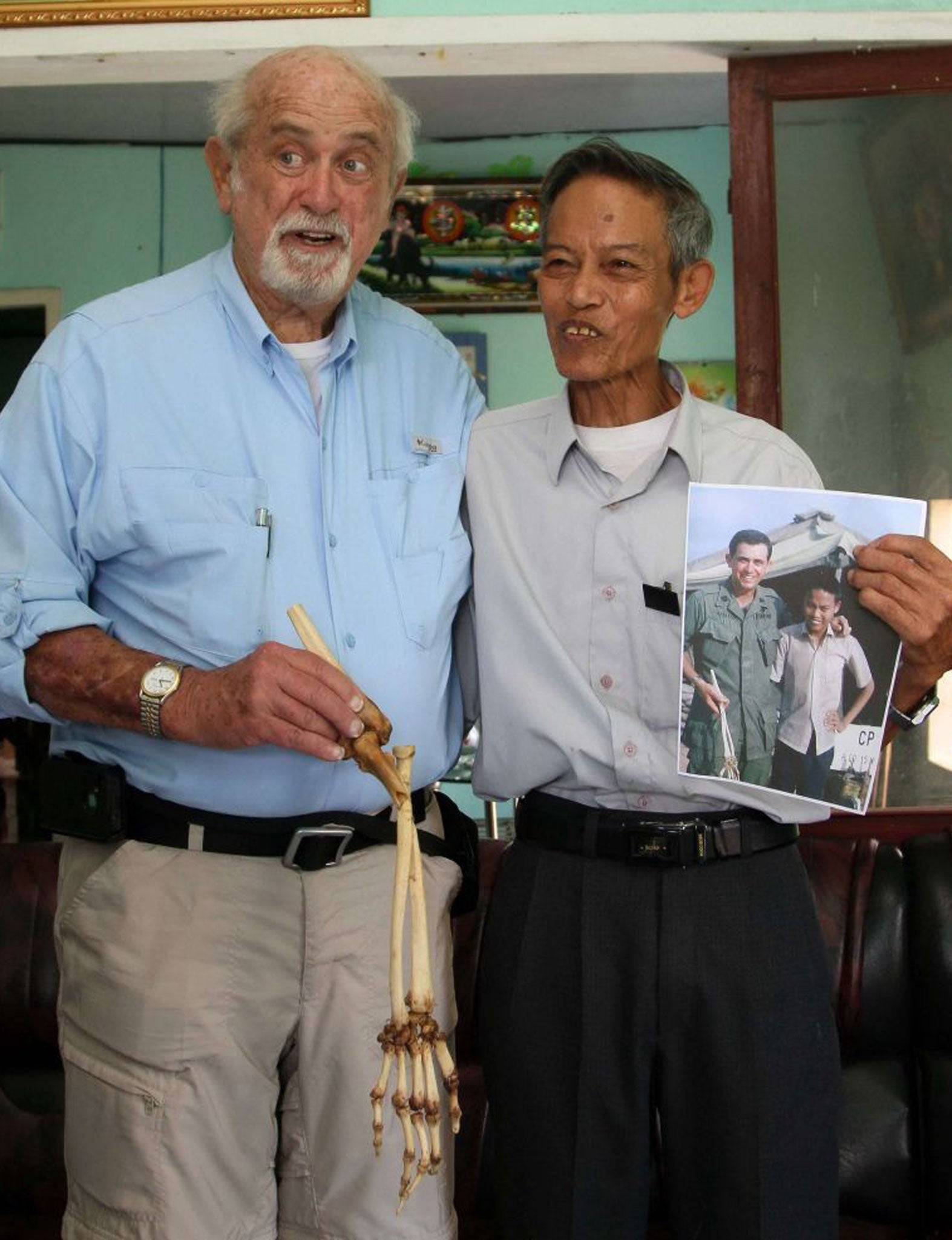 Vietnamese returned the cut off hand after 47 years