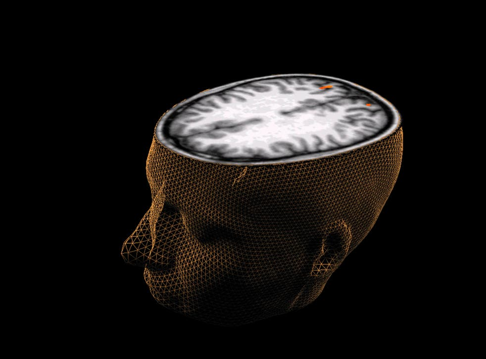 An undated image of the human brain taken through scanning technology. REUTERS/Sage Center for the Study of the Mind, University of California