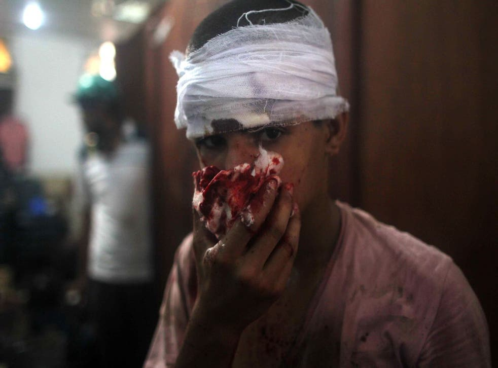 An injured Egyptian youth is seen at a makeshift hospital during clashes between supporters of Egypt's ousted president Mohamed Morsi and police in Cairo on August 14, 2013