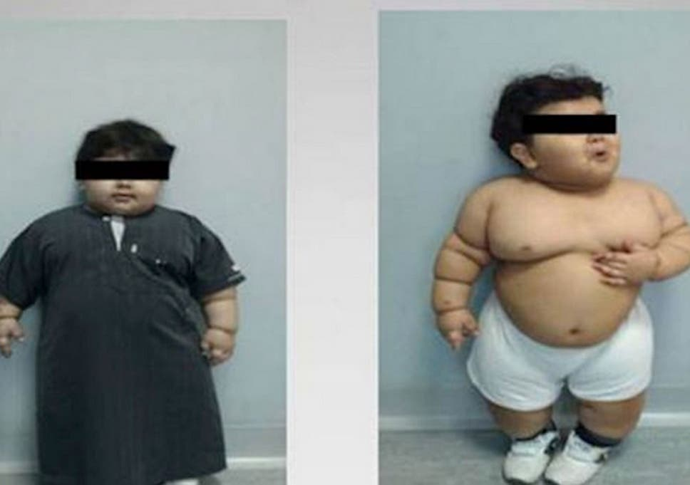 Morbidly Obese Two Year Old From Saudi Arabia Youngest Person To