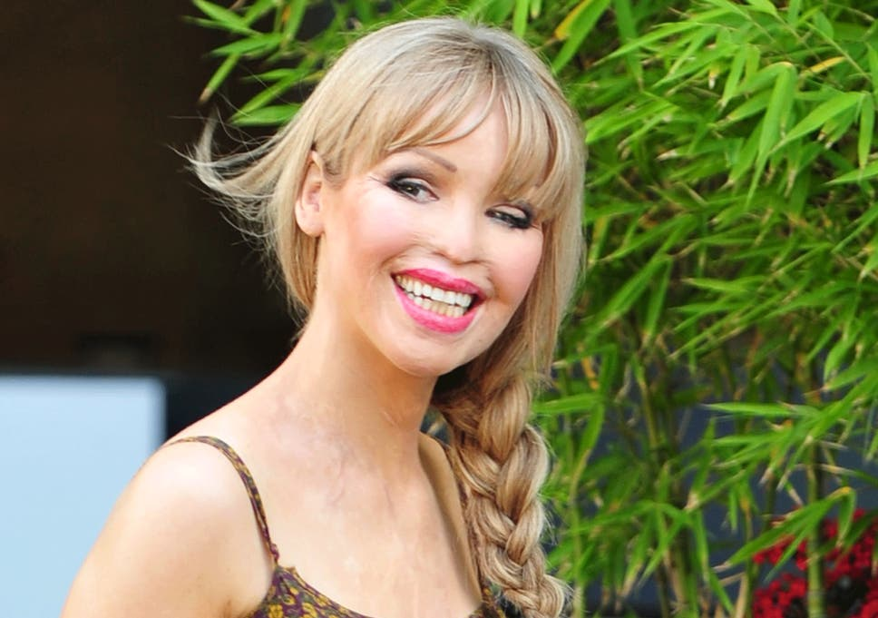cf9c808f6fa3f Acid attack survivor Katie Piper is pregnant with her first child ...