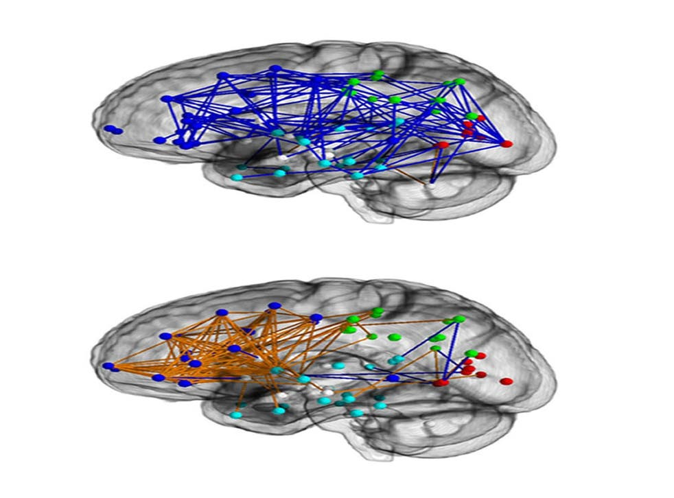 Brain networks in males (upper) and in females (lower)