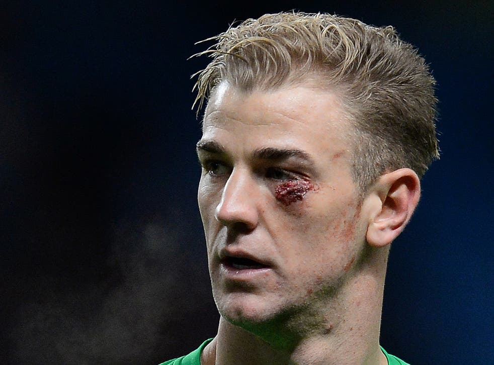 Joe Hart suffered a nasty looking cut which required five stitches in Manchester City's 1-0 victory over Crystal Palace