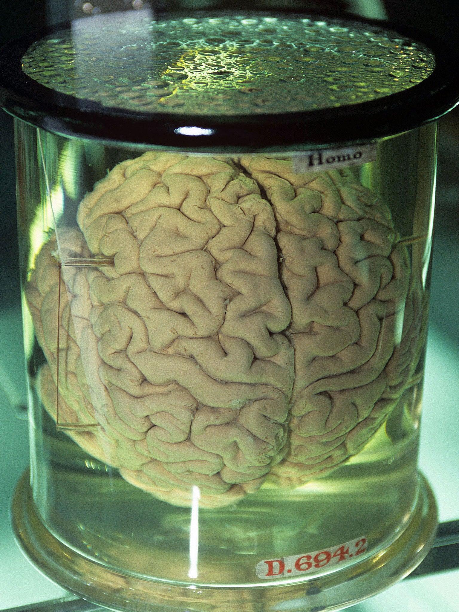 Formaldehyde Brain Real Human Brain In A ...