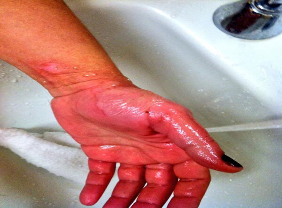 A US woman's burned hand after she tried to turn boiling water into ice during the polar vortex