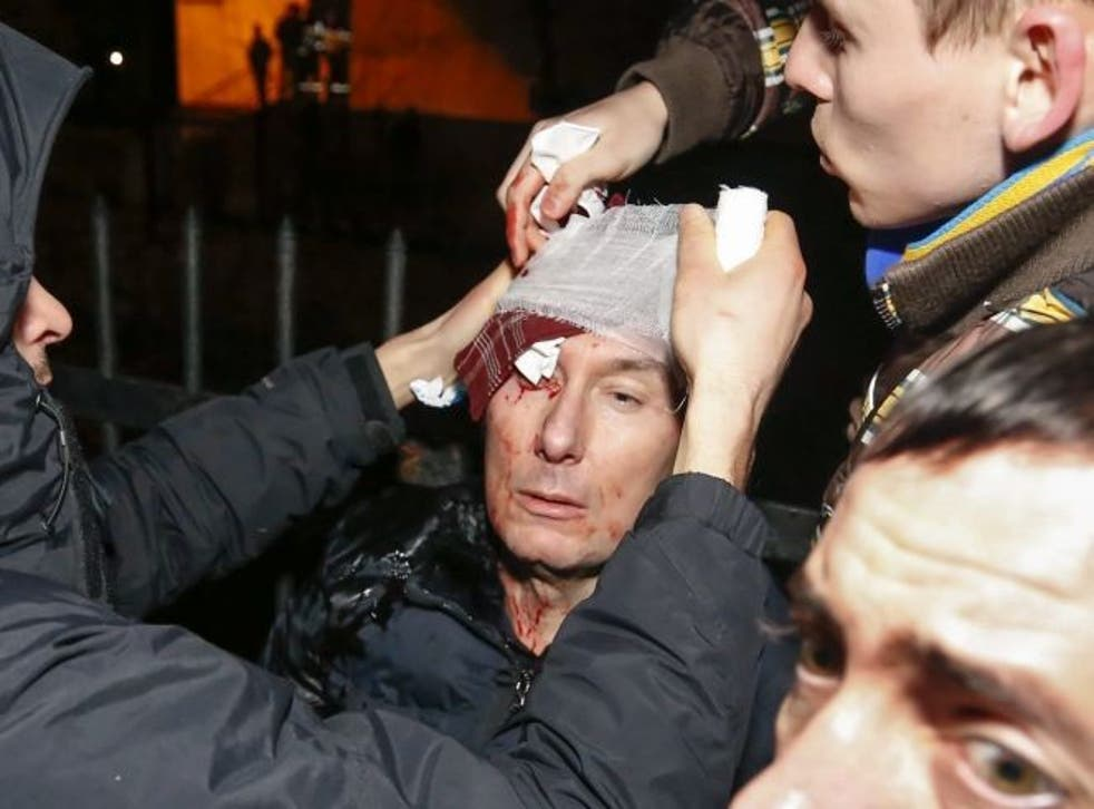Former Ukrainian Minister of Internal Affairs Yuriy Lutsenko is being treated after being injured during clashes with police as he took part in a protest near the Kyiv Svyatoshinskyi district court in Kiev, Ukraine, 11 January 2014, where guilty verdicts