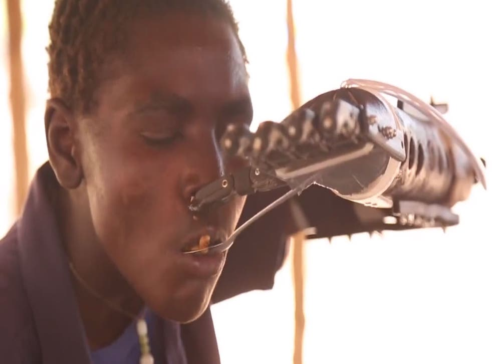 Daniel Omar and his 3D-printed prosthetic arm.