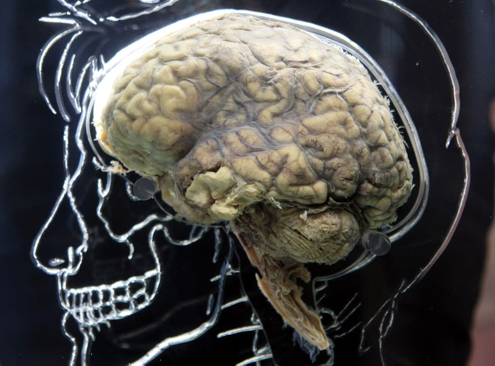 A real human brain is displayed in a 2011 Bristol exhibition