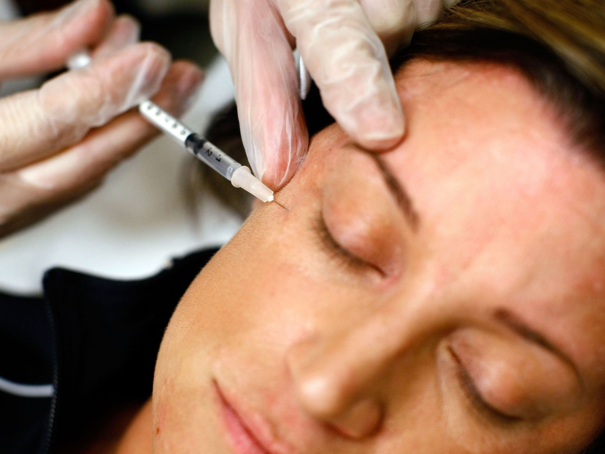 Cosmetic fillers can cause blindness when injected into the