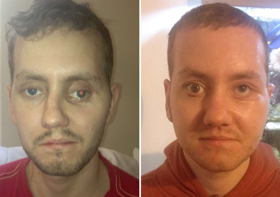 Pioneering 3D printing used to rebuild British man's face | The
