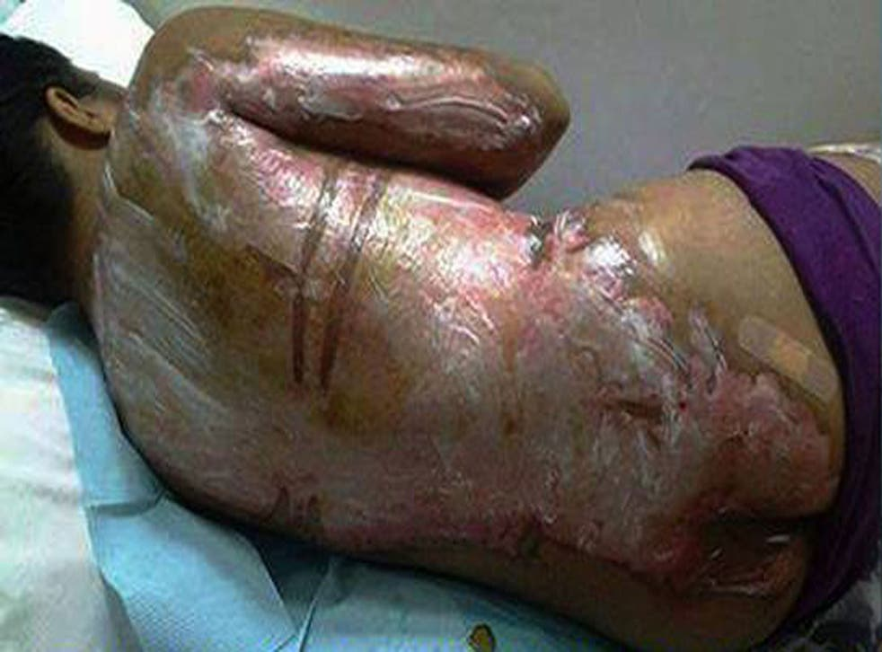 The woman's cousin posted photographs of her injuries on Facebook