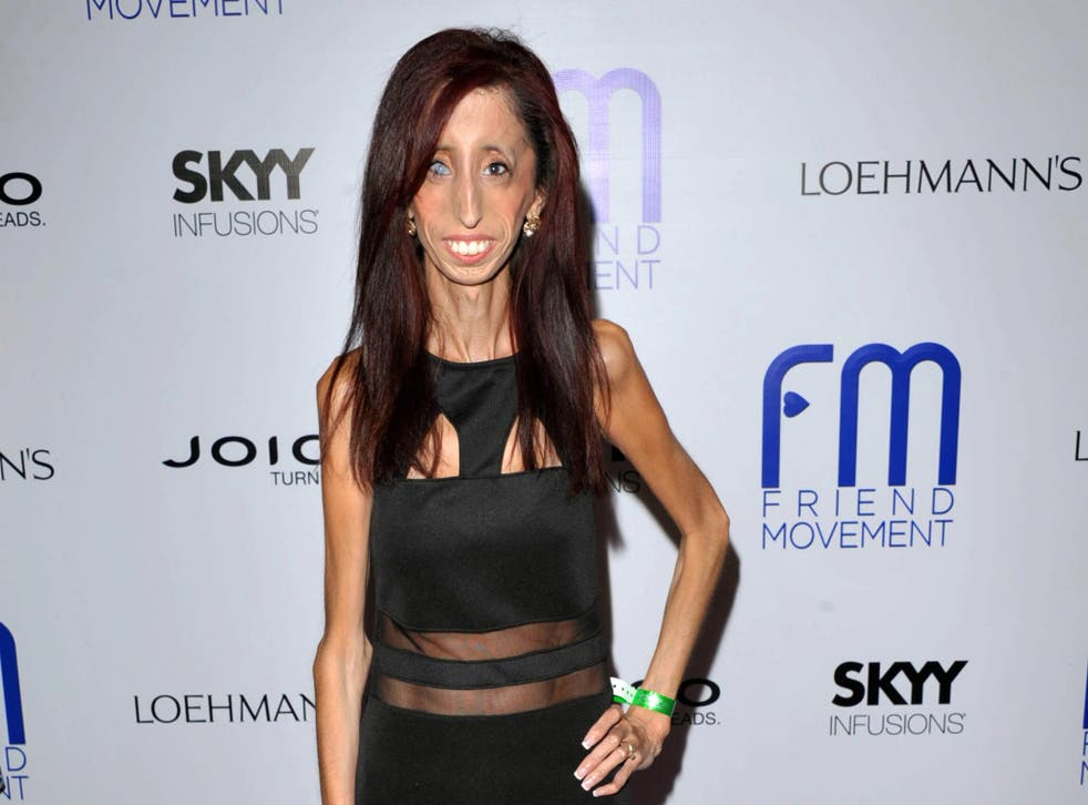 Lizzie Velasquez, who possesses a rare and unknown syndrome that prevents her from gaining weight. She is raising funds on Kickstarter for an anti-bulling documentary