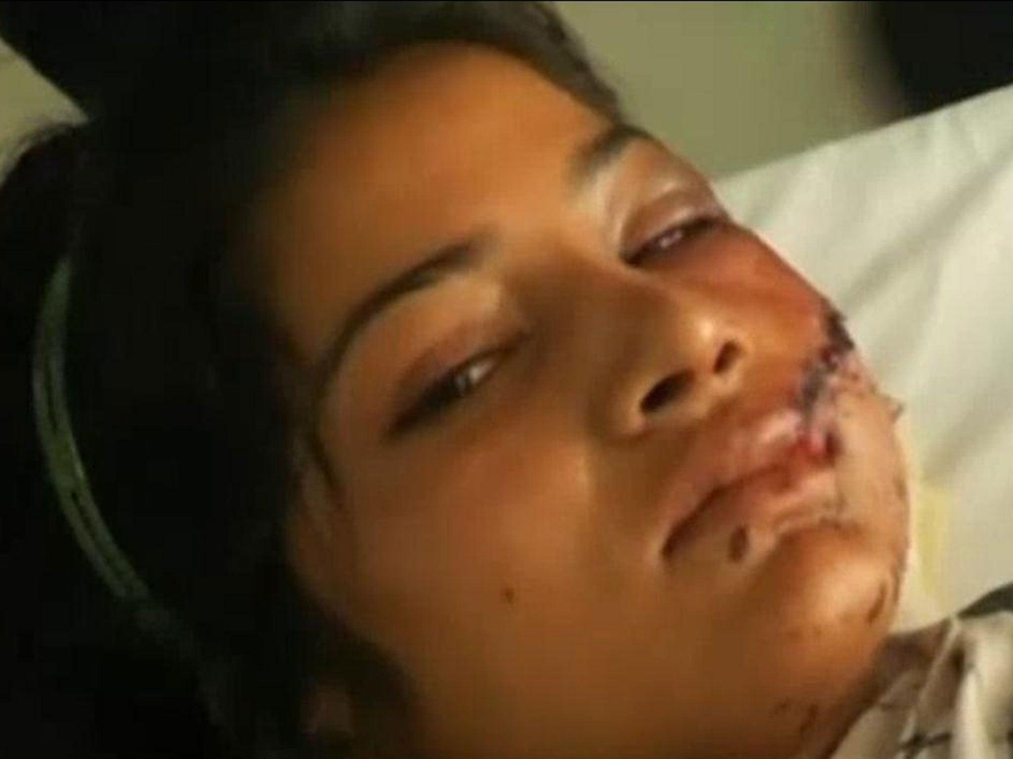 girl getting shot twice