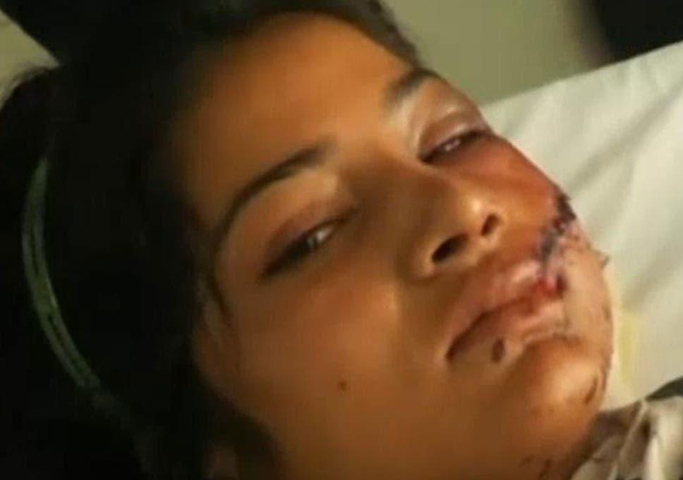 Pakistan woman survives 'honour killing': Saba Maqsood shot